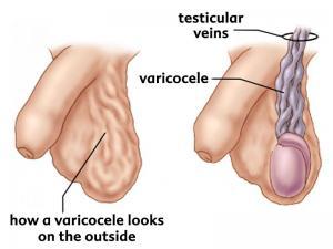 بیماری واریکوسل