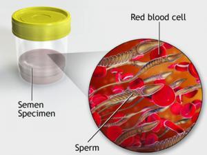 درمان خون در منی