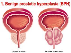 هیپرپلازی پروستات