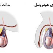 بیماری هیدروسل