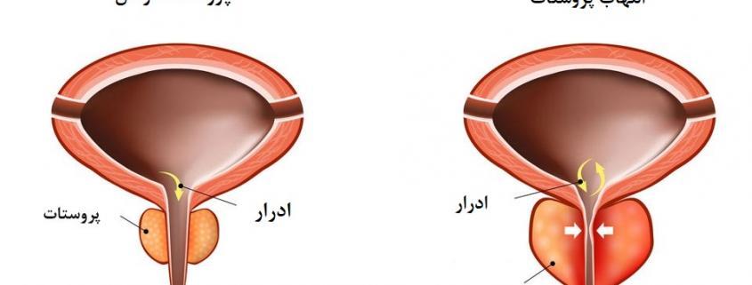 عفونت پروستات یا همان التهاب پروستات