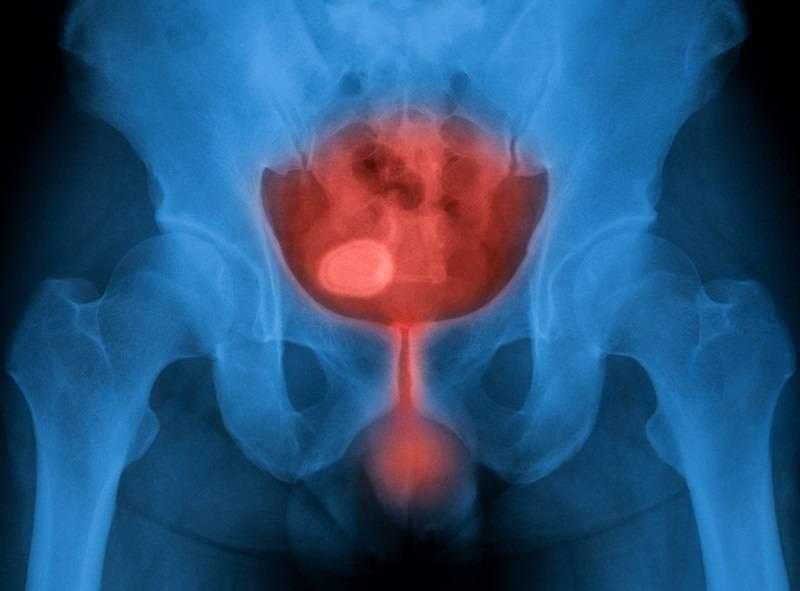 عفونت دستگاه ادراری عاملی برای سوزش ادرار