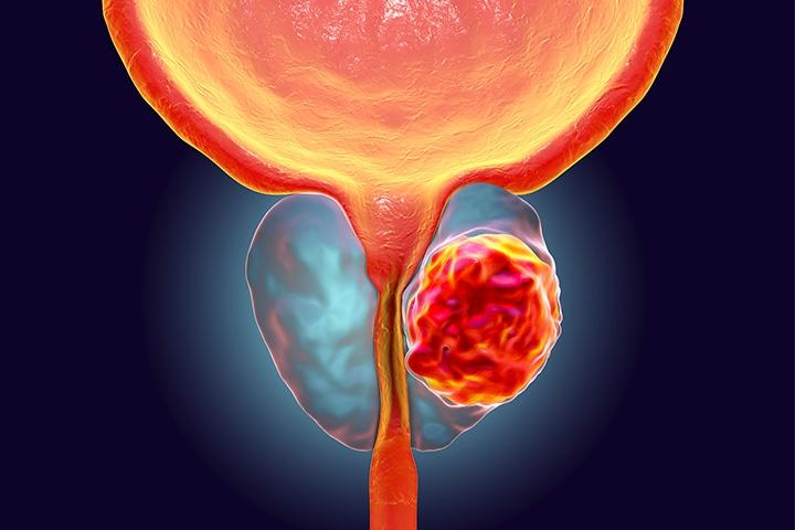پروستاتیت یا التهاب پروستات